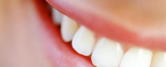 Como clarear os dentes com produtos naturais?